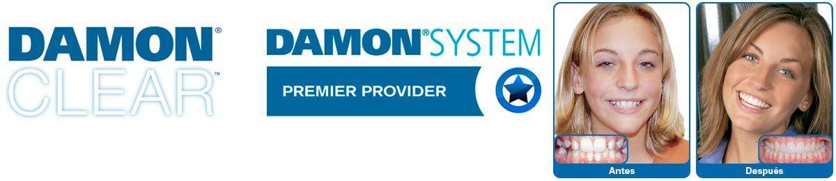 Logotipo de la empresa Damon, sistema utilizado por la clínica dental Padrós en Barcelona