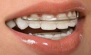 Ortodoncia rápida Inman Aligner