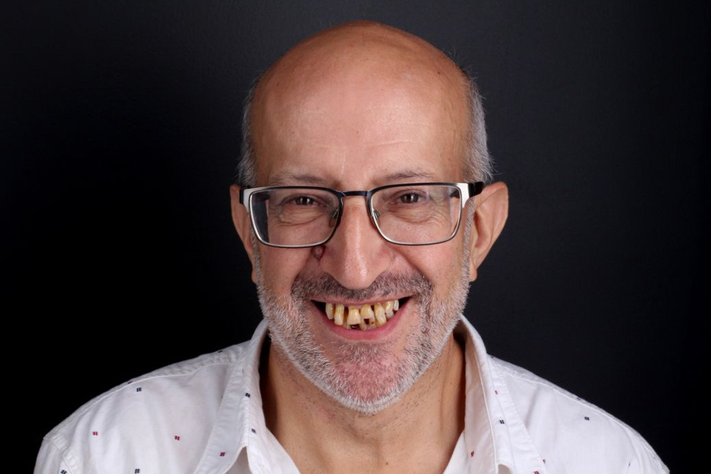 Antes del tratamiento de prótesis dentales
