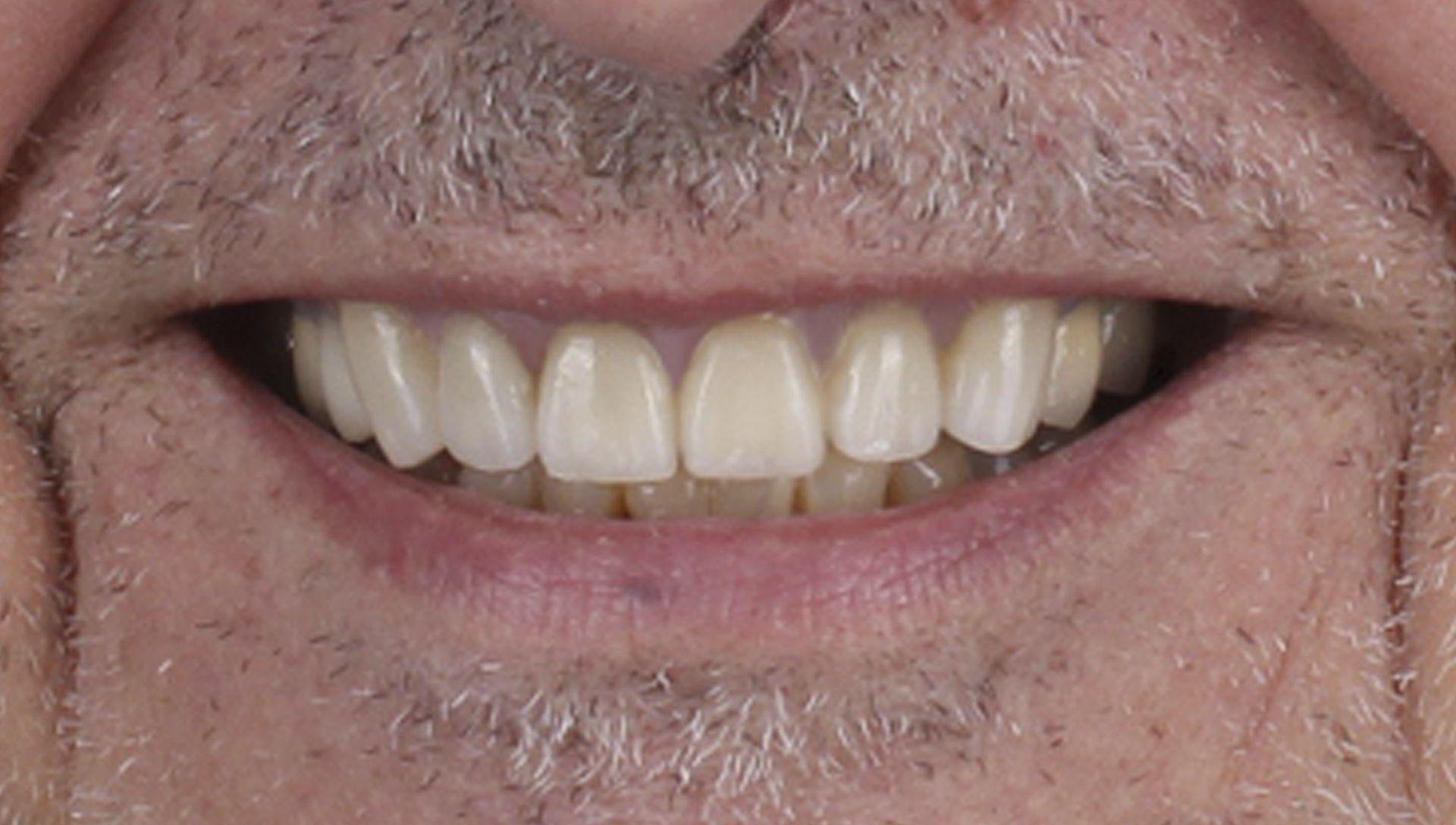 Después del tratamiento de implantes dentales