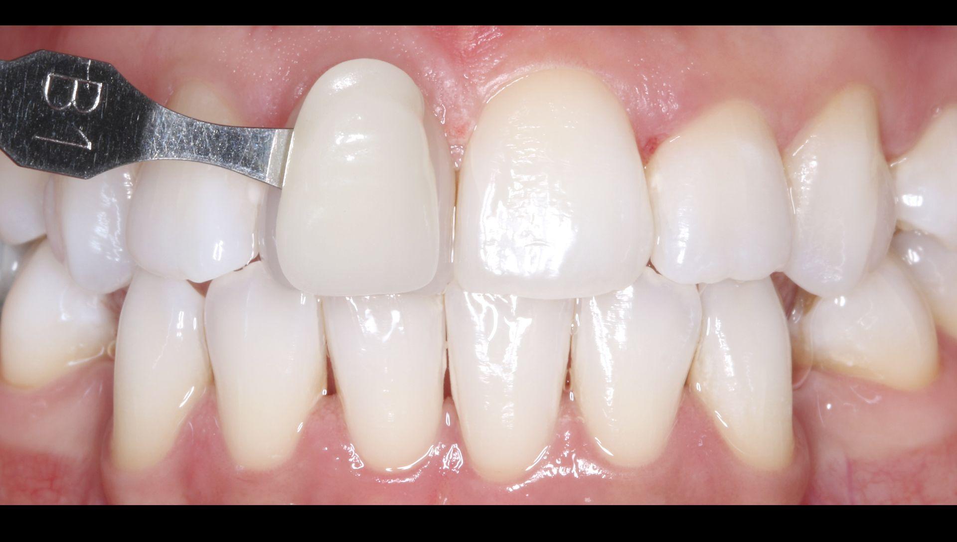 Después del tratamiento de estética blanqueamiento dental. Clínica dental Padrós, dentista en Barcelona