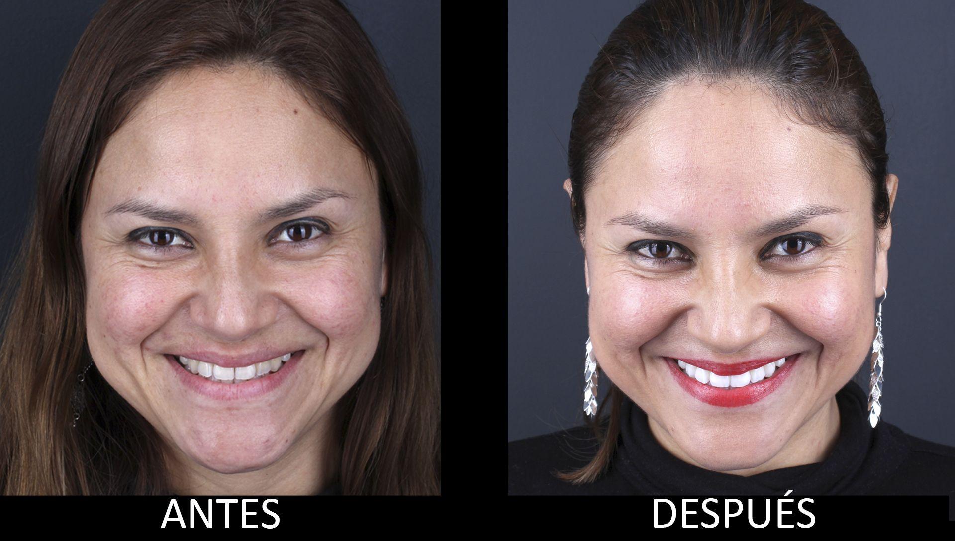 Antes y después del tratamiento de blanqueamiento dental
