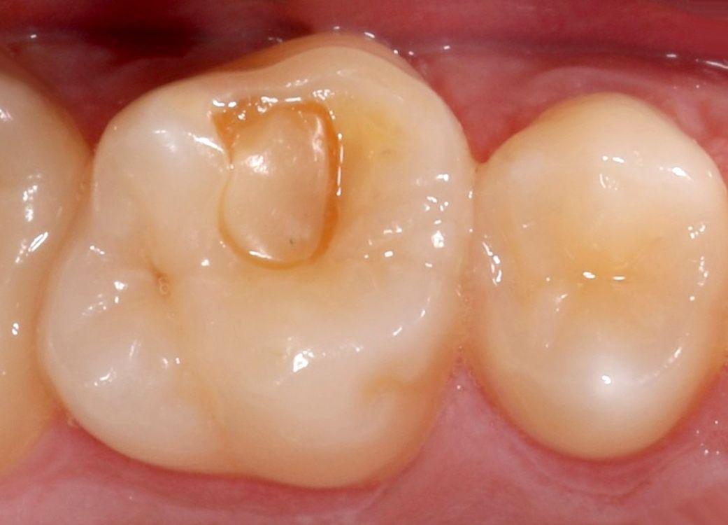 Antes del reemplazo del empaste dental defectuoso por uno nuevo estratificado de larga duración. La reconstrucción resulta casi imperceptible.