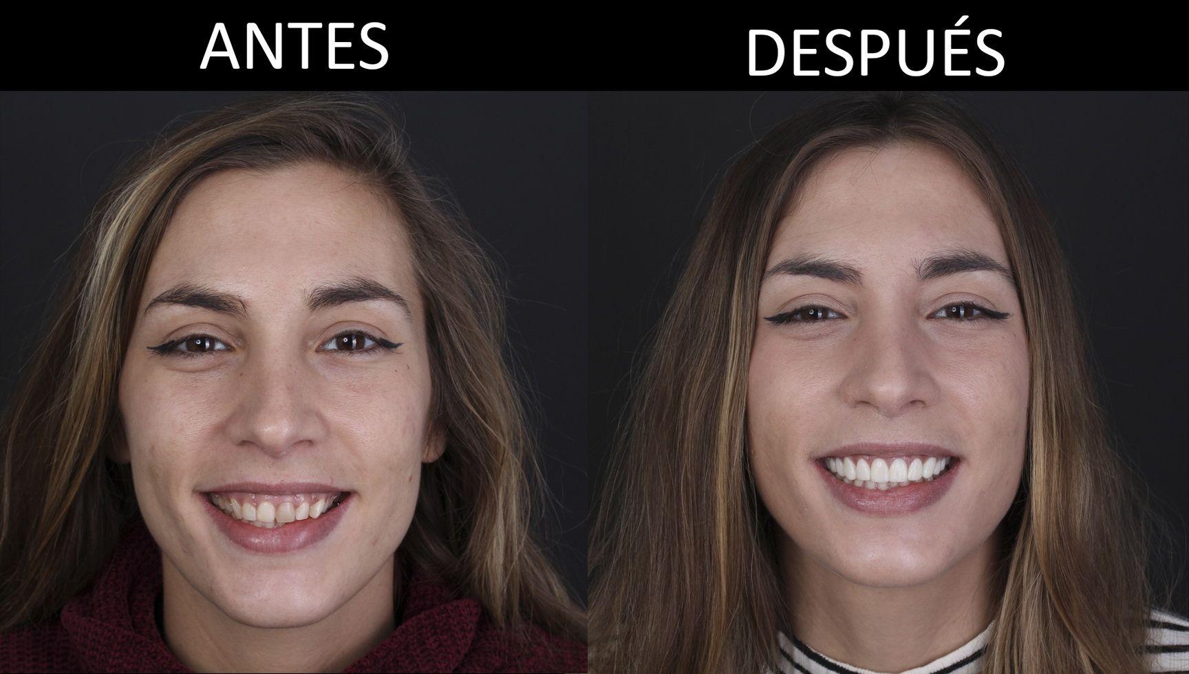Antes y después del tratamiento de estética dental
