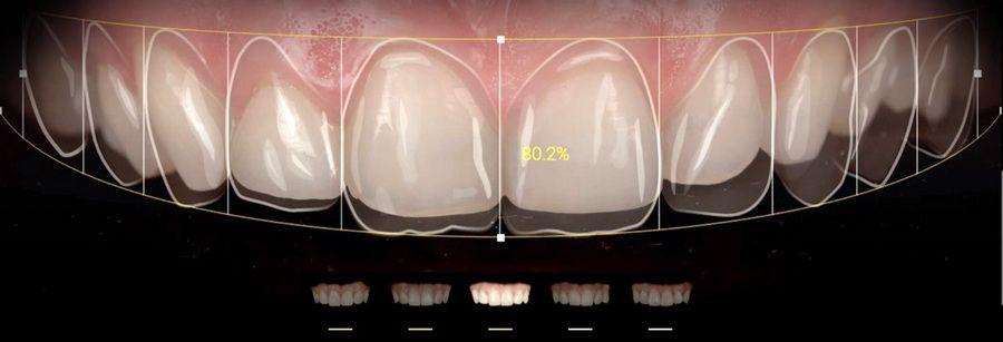 Aplicaciones como Smile Cloud, Ivosmile, DSDapp o Snap Dental nos ayudan en el cálculo de proporciones, elección de la forma, color y posición de los dientes en su nueva sonrisa y nos permiten llevar a cabo simulaciones digitales para ayudarnos a escoger tu nueva sonrisa.
