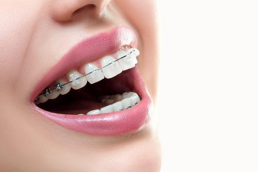 Disponemos del tratamiento de ortodoncia brackets Damon en clínica dental Padrós, tu dentista en Barcelona