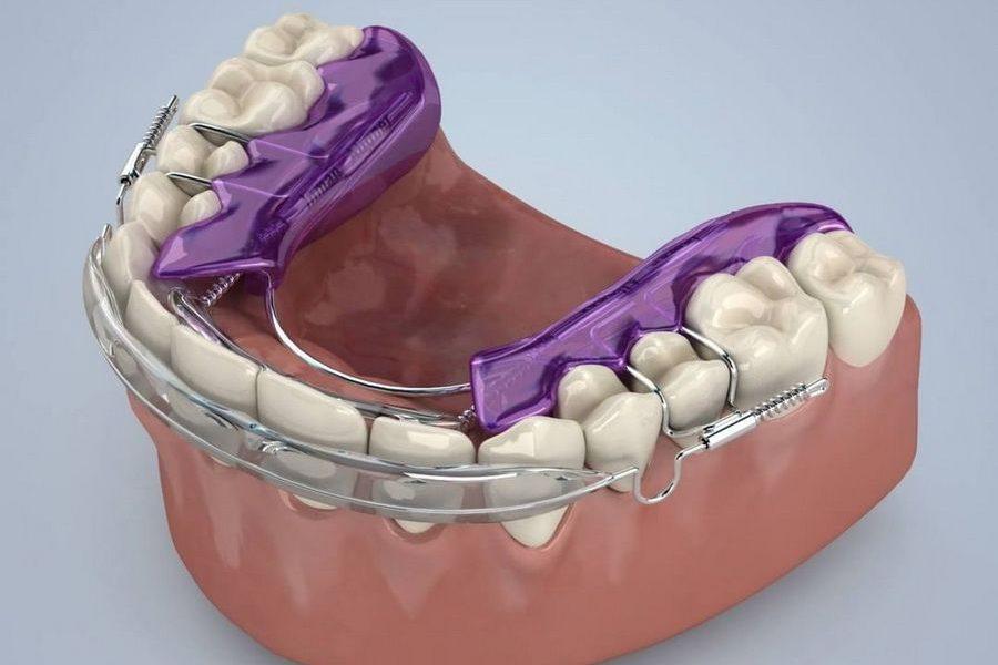 Disponemos del tratamiento de ortodoncia rápida Inman Aligner en clínica dental Padrós, tu dentista en Barcelona