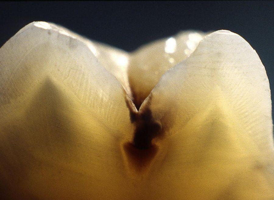 El sistema Diagnodent de diagnóstico de caries por láser resulta de gran ayuda para detectar de forma precoz las lesiones ocultas de los dientes