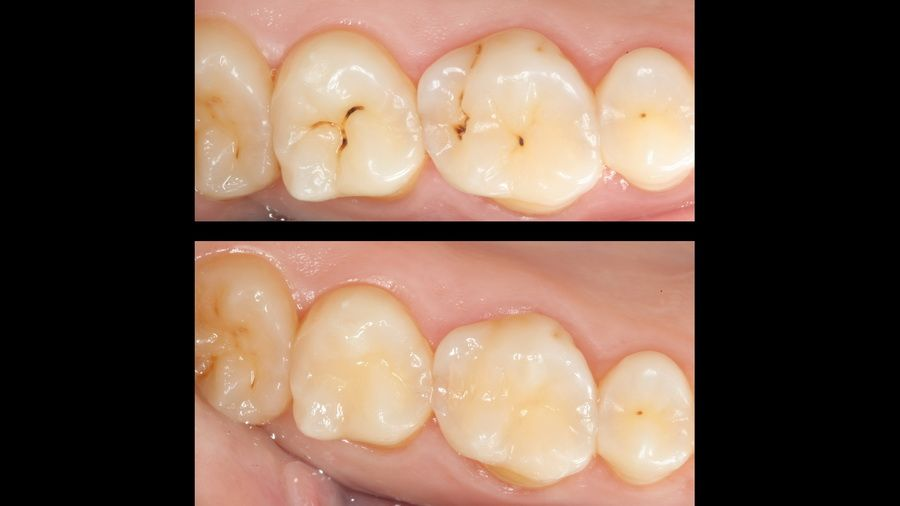 La microabrasión dental permite tratar caries de forma mínimamente invasiva , sin molestias, vibraciones ni sonidos agudos