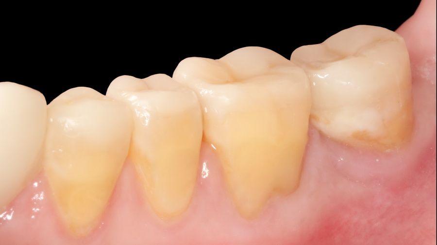 Caso de desgaste dental tratado en nuestra clínica dental en Barcelona