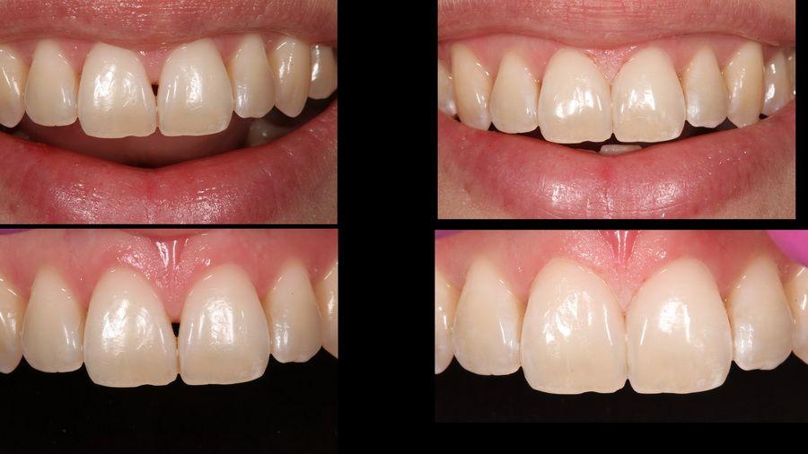 Tratamiento de reconstrucción de dientes en clínica dental Padrós. Tu dentista en Barcelona