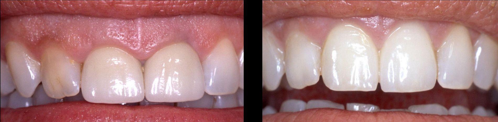 Tratamiento de estética de las encías, sonrisa gingival o exceso de encía. Clínica dental Padrós, dentista en Barcelona