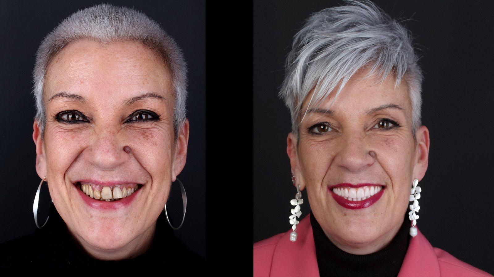 Tratamiento de implantes dentales en la clínica dental Padrós. Tu dentista en Barcelona