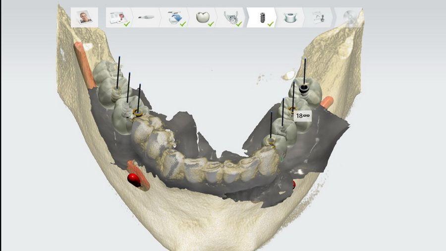 Nuestro sistema de radiología 3D Simplant nos permite programar los casos de tratamientos de implantes dentales con gran precisión. Podemos realizar cirugías virtuales, preparar plantillas, conocer la densidad del hueso en cada punto, etc.