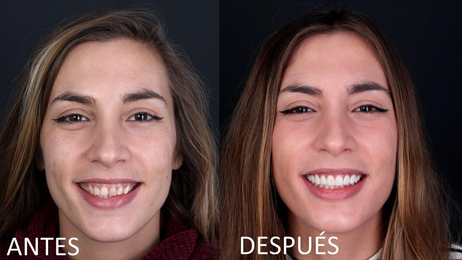 Tratamiento de carillas dentales de composite en clínica dental Padós. Tu dentista en Barcelona