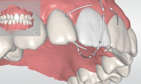 Reproducción digital obtenida a través del nuevo escáner intraoral PrimeScan