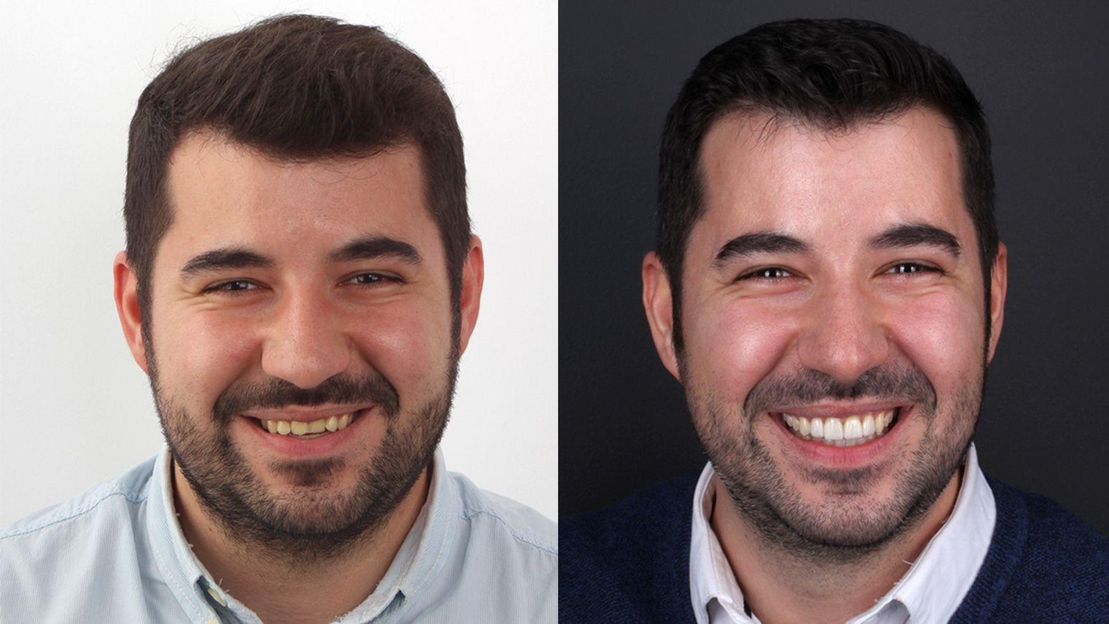 Antes y después del tratamiento de carillas de porcelana