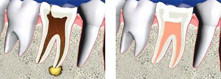 Vista interna de los dientes antes y después del tratamiento de endodoncia