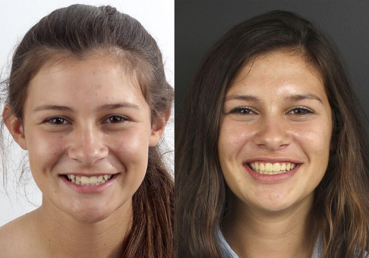 Antes y después del tratamiento de ortodoncia Damon