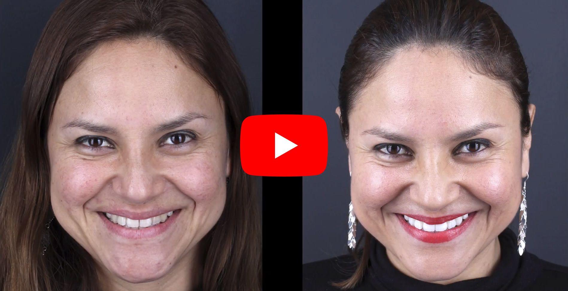 Video testimonios de los pacientes tratados en clínica Padrós de blanqueamiento dental