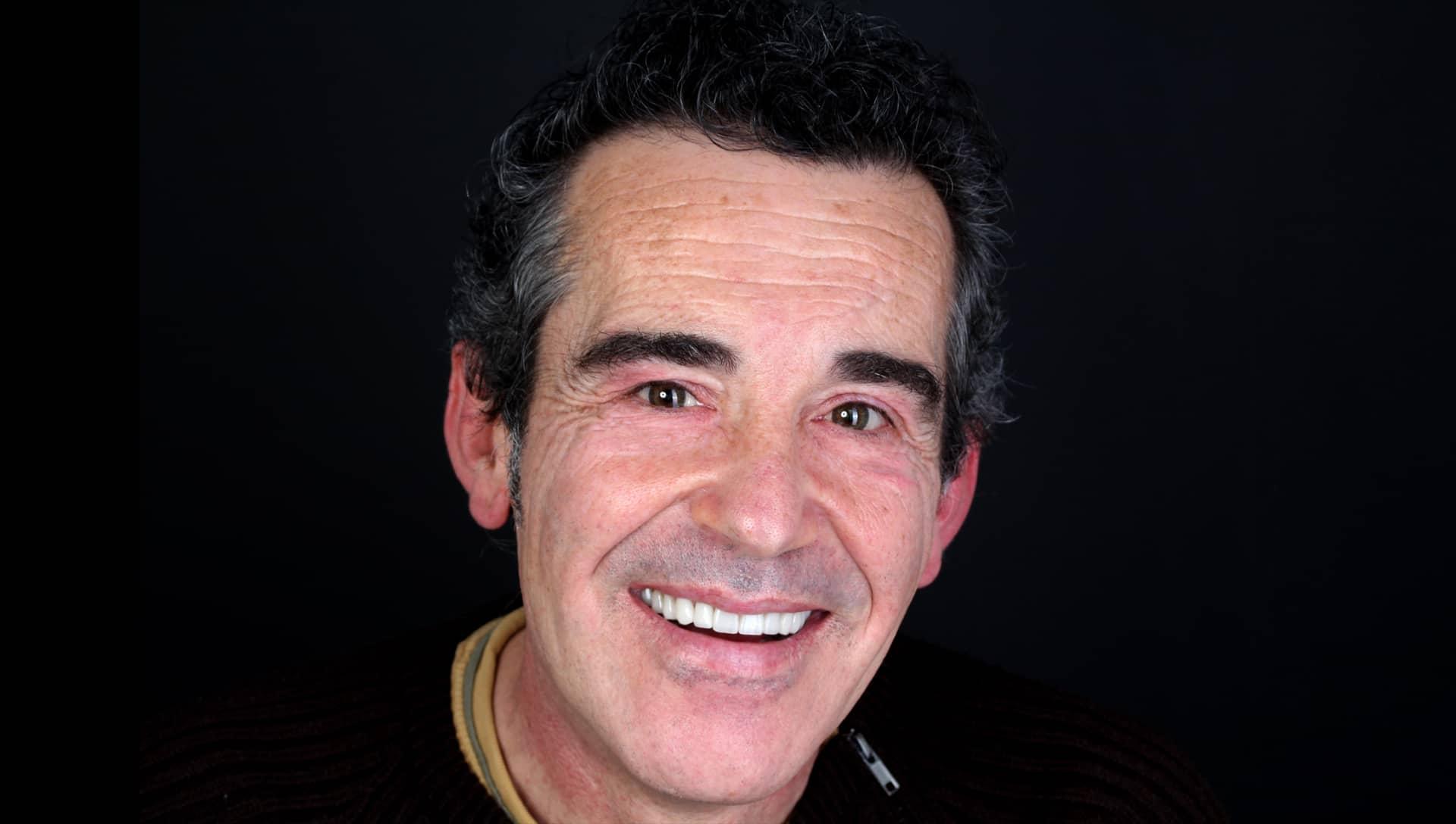 Jose Luis después del tratamiento de estética dental y prótesis dentales